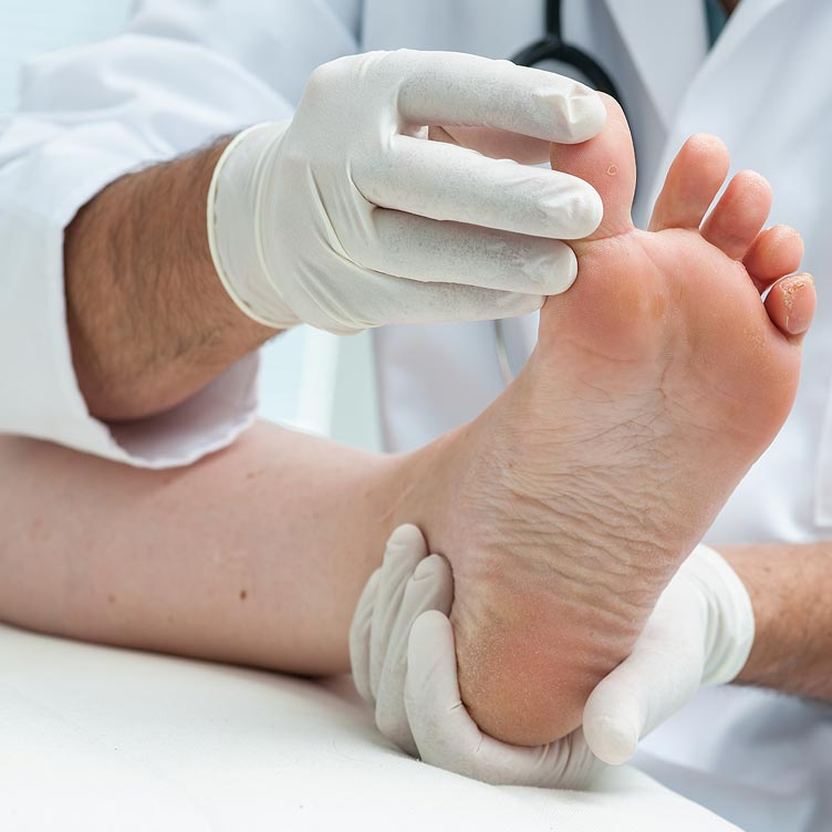 Common Conditions Treated at the Birmingham Foot Clinic