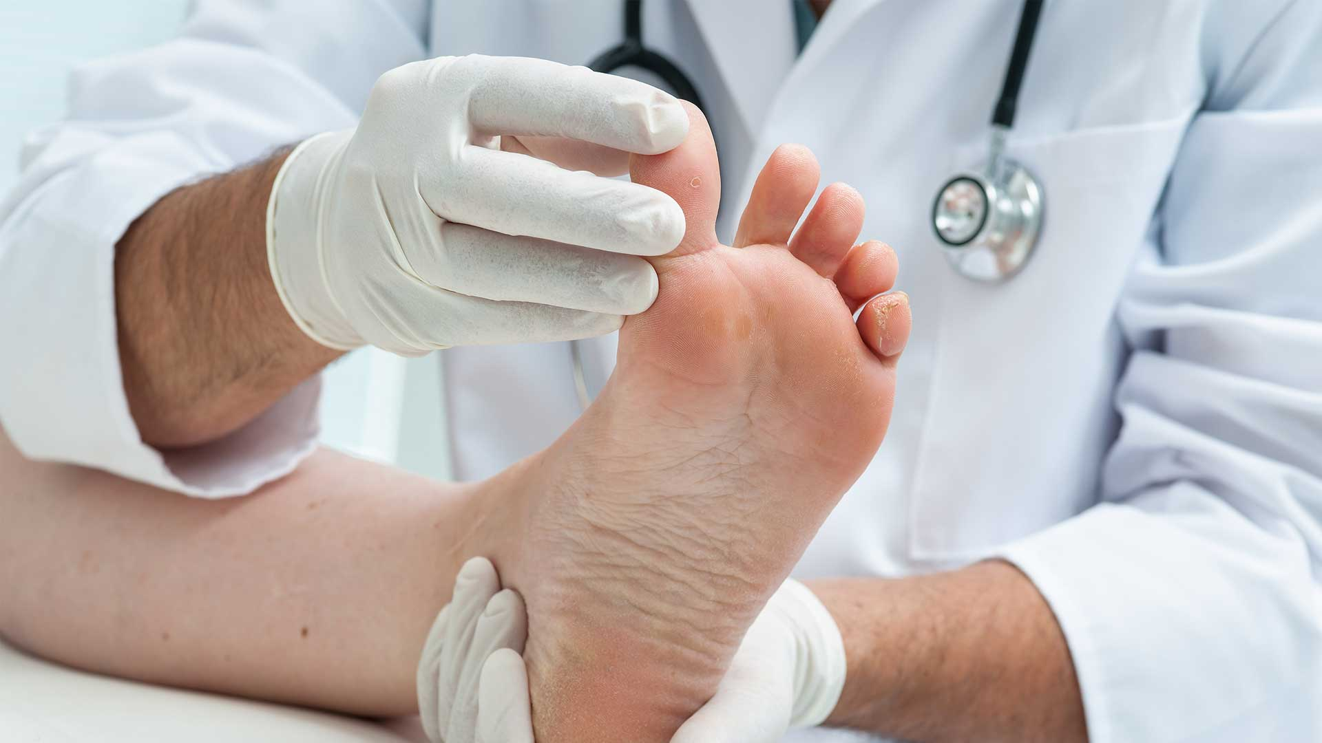 Birmingham Foot Clinic Treatment - Common Conditions Treated